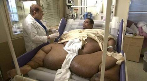 Топ самых толстых людей в мире 1