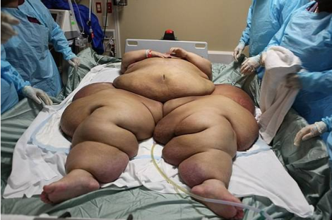 самые тяжелые люди мира - мэра розалес до операции